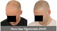 Micro Haar Pigmentatie (MHP)
